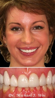 marcella2 after porcelain crowns