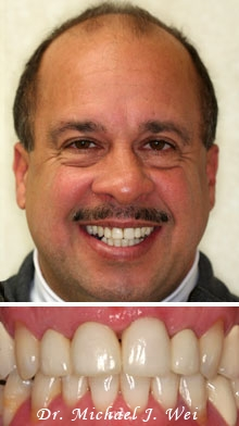 ralph after porcelain crowns and veneers