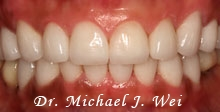after porcelain veneers - michelle c
