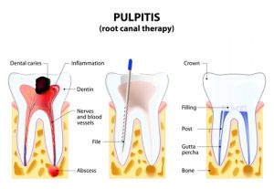 Root Canal Manhattan Dentist
