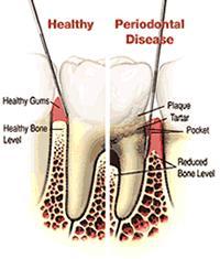 toothdiagram