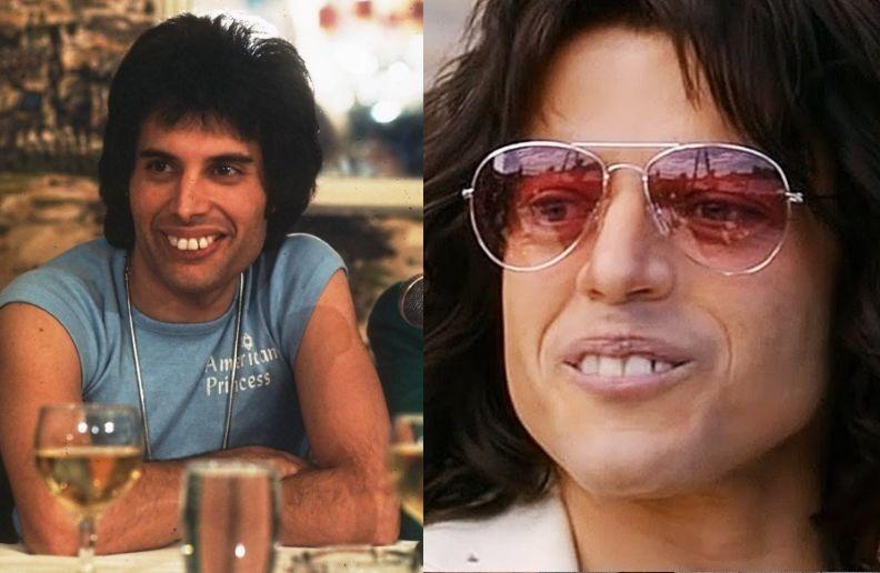 The Oscars Of Smile Makeovers Rami Malek And Freddie Mercury S Teeth Michael J Wei Dds Pc